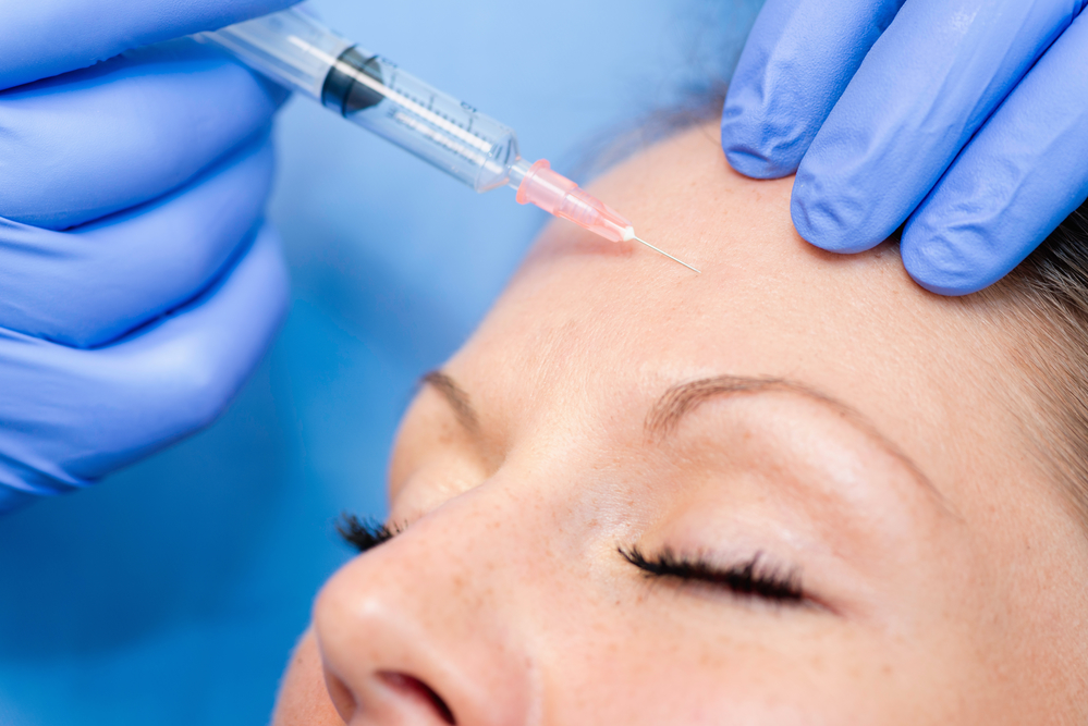 Facial Fillers, San Antonio
