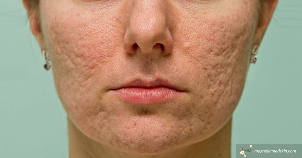 How Much Does Acne Scar Treatment Cost?