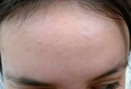 Acne Treatment After Photo - Patient 1