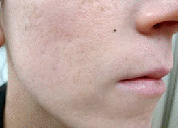 Acne Treatment After Photo - Patient 2