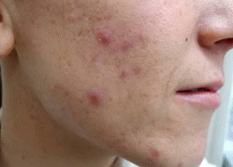 Acne Treatment Before Photo - Patient 2
