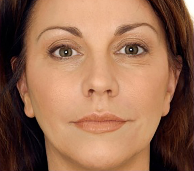 Botox After Photo-patient 3