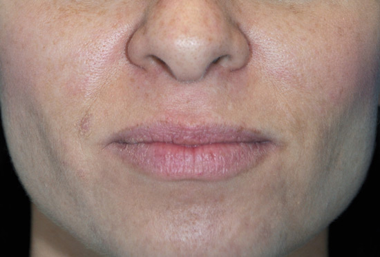 Chemical Peels - after patient 1