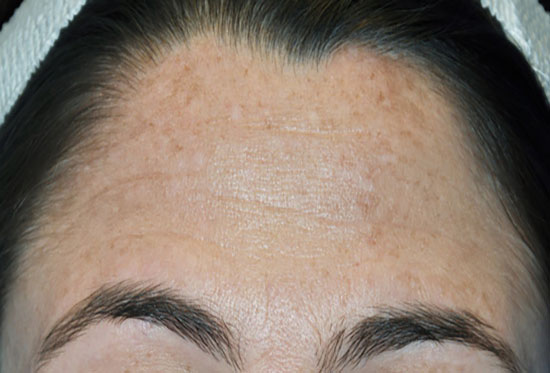Chemical Peels - after patient 2
