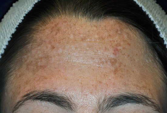 Chemical Peels - before patient 2