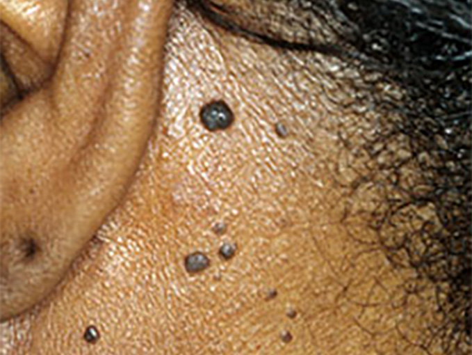 Dermatosis Papulosa Nigra before treatment - patient 1