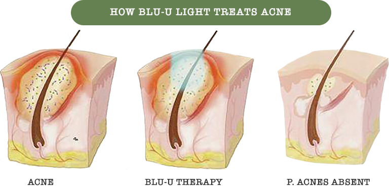 How Blu-U Light Treats Acne