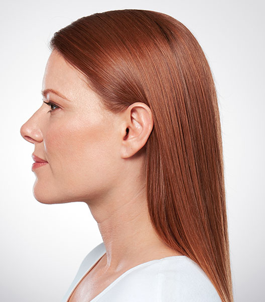 Kybella after - patient 1