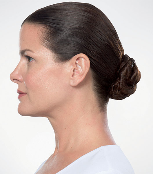 Kybella after - patient 4