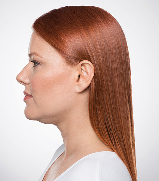 Kybella before - patient 1