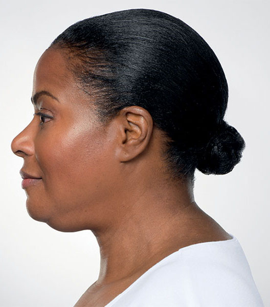 Kybella before - patient 3