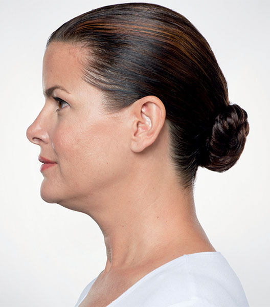Kybella before - patient 4