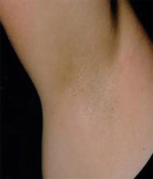 Laser Hair Removal after - patient 1
