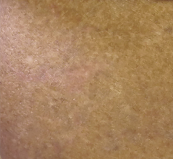 Laser Tattoo Removal - after 4 Tx patient 1