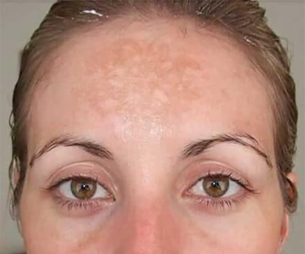Microdermabrasion-before treatment