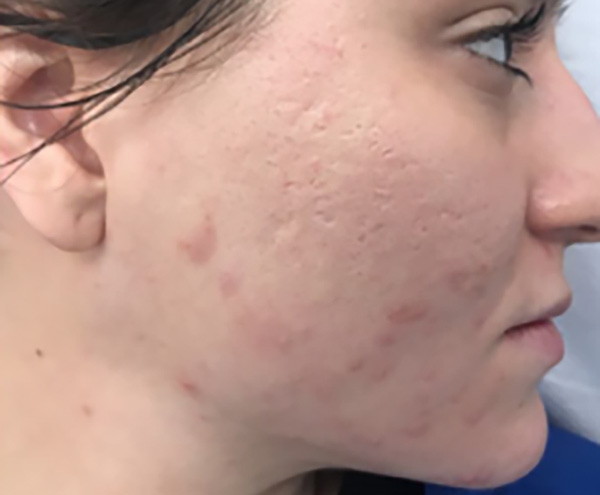 Microneedling - after treatment