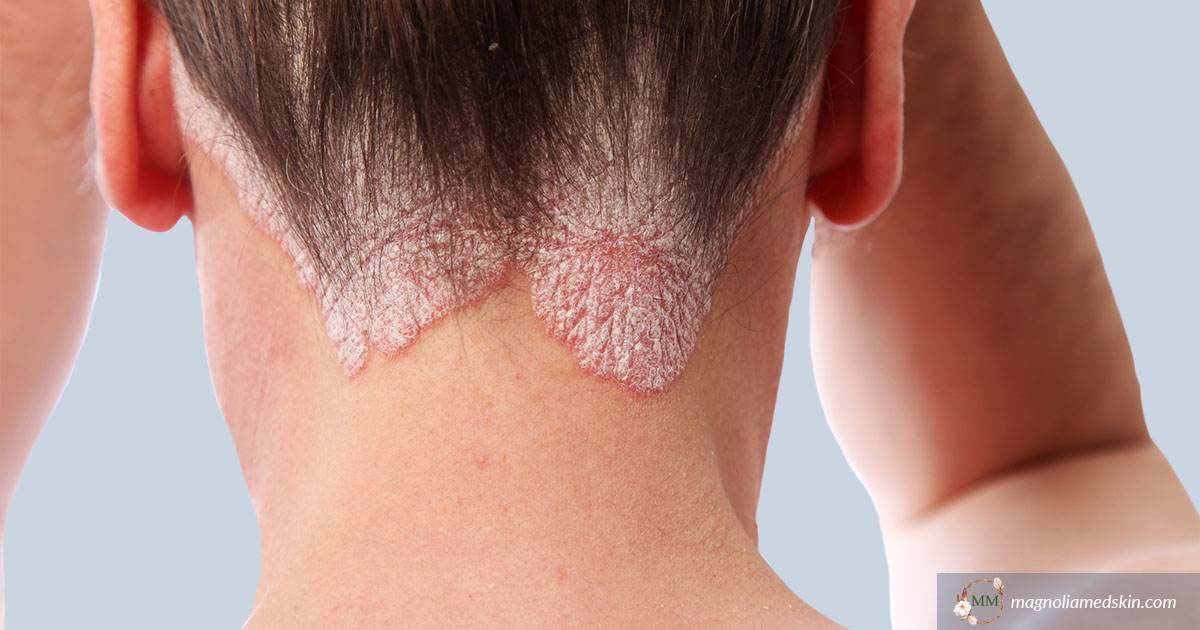 Psoriasis Treatments, Symptoms and Diagnosis