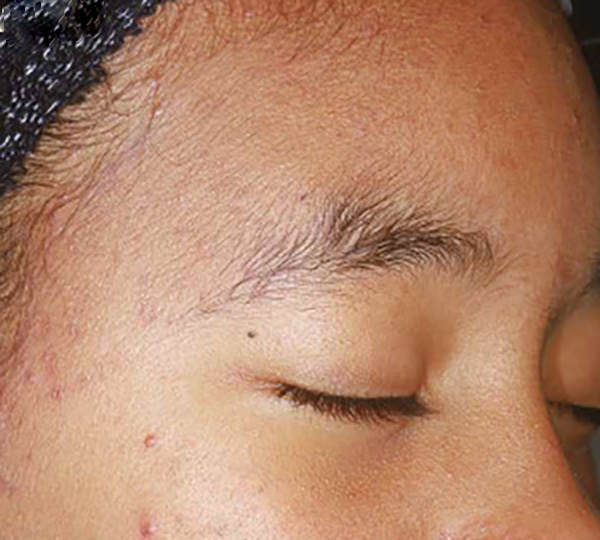 Skin of Color -acne after patient 2