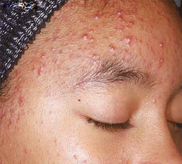 Skin of Color -acne before patient 2
