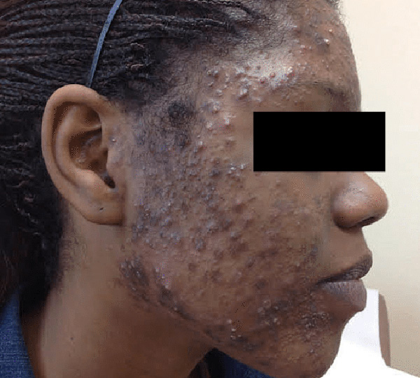 Skin of Color -acne before patient 3