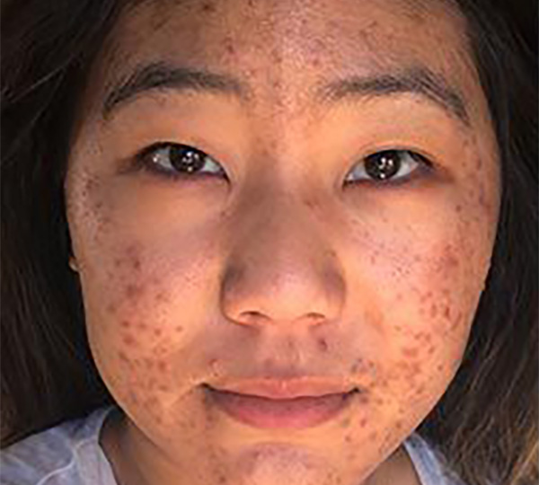 Skin of Color -acne before patient 4