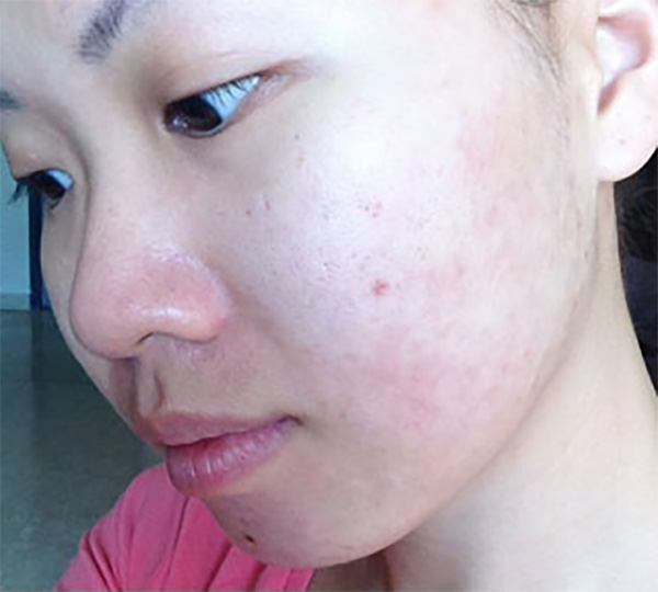 Skin of Color -acne after patient 1