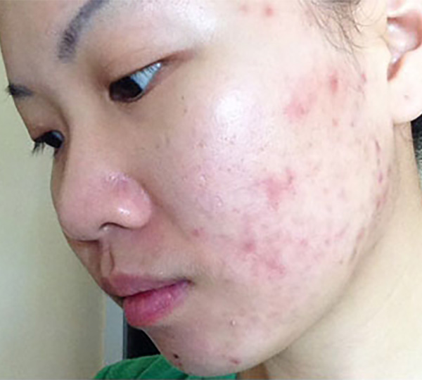 Skin of Color -acne before patient 1