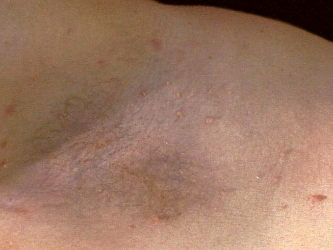 Skin Tag Removal - before treatment photo