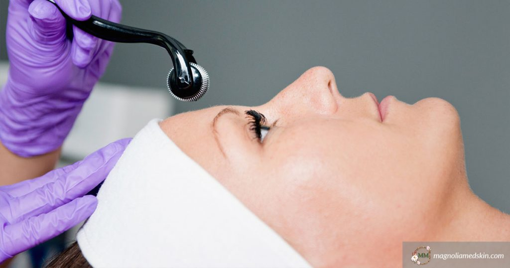 Quick Guide To Microneedling