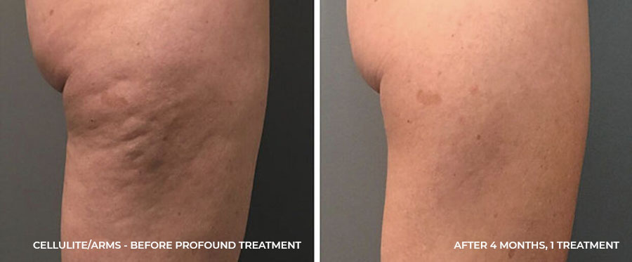Cellulite - After 4 Months, 1 Treatment