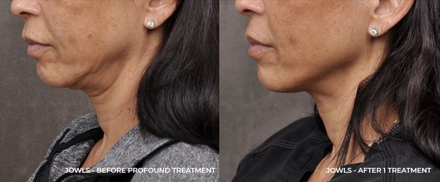 Jowls - After 1 Treatment