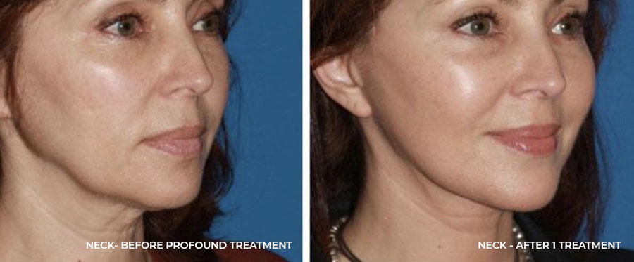 Neck - After 1 Treatment