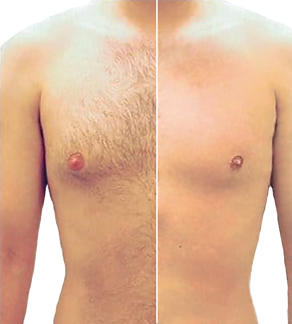 Laser Hair Removal Men Before & After