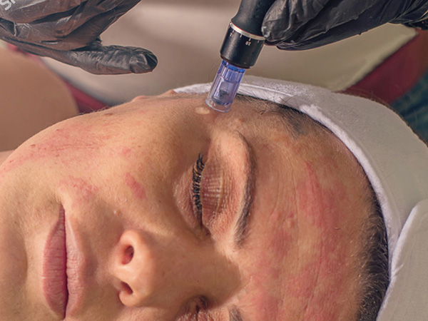 Microneedling Service