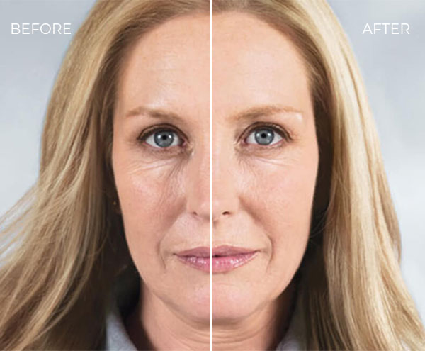 Sculptra Before & After - Patient 1