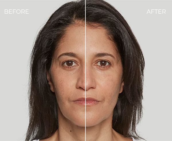 Sculptra Before & After - Patient 2