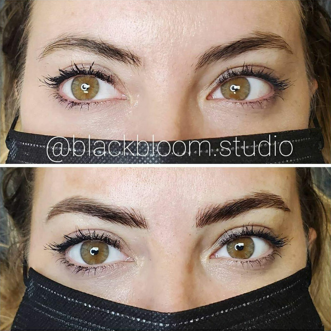 Microblading - Before & After - Patient 1