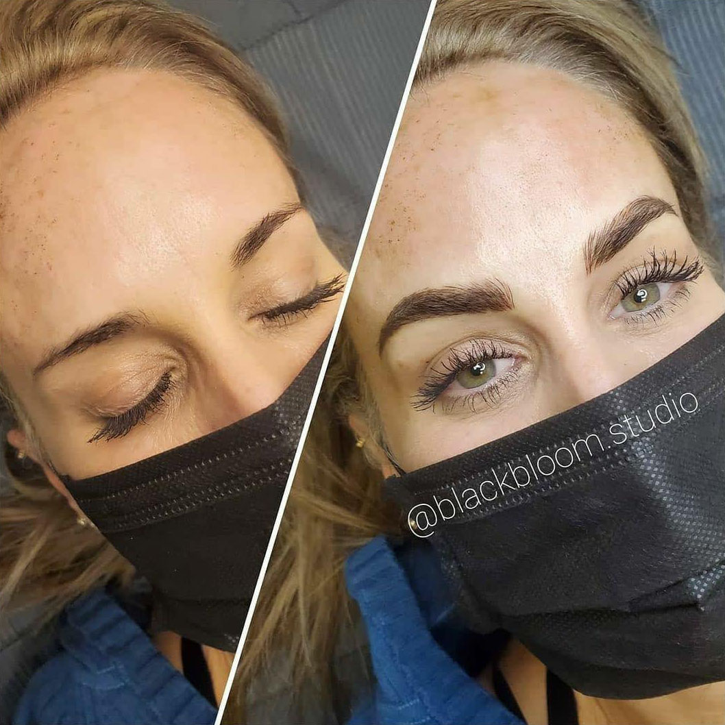 Microblading - Before & After - Patient 2